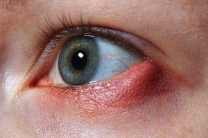 Los malos hábitos, ciertas enfermedades y el uso de ordenadores, elevan el número de patologías oculares