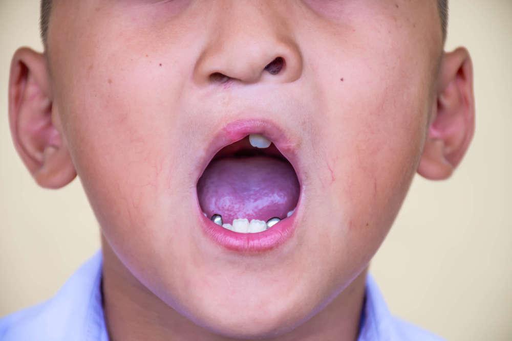 ¿Cómo afecta a la salud general el paladar hendido?